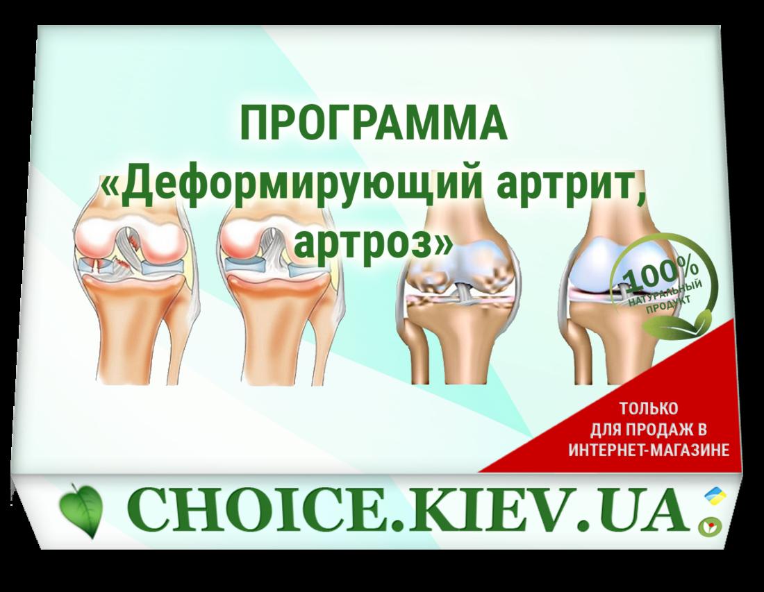 ПРОГРАММА «Деформирующий артрит, артроз»